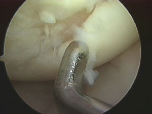 full thickness cartilage injury